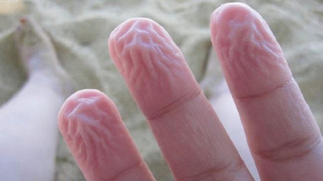 6-piele-incretita