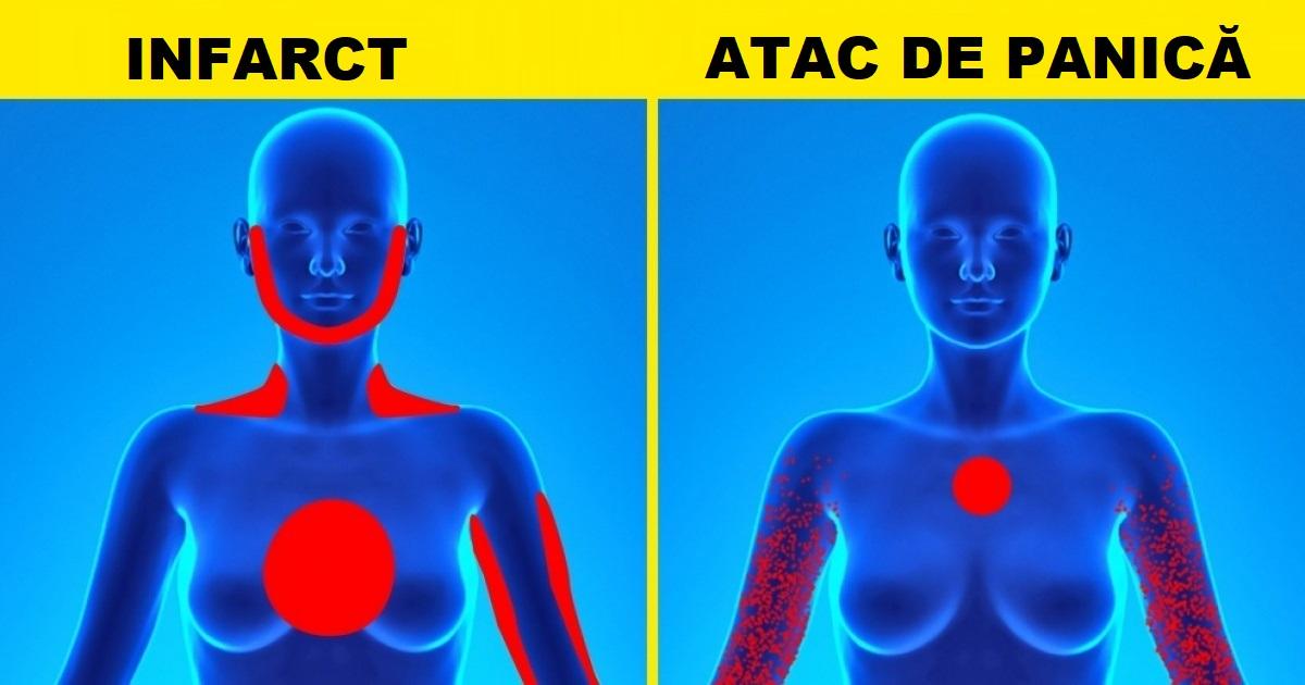 atacul de cord scade cum afectează papiloma