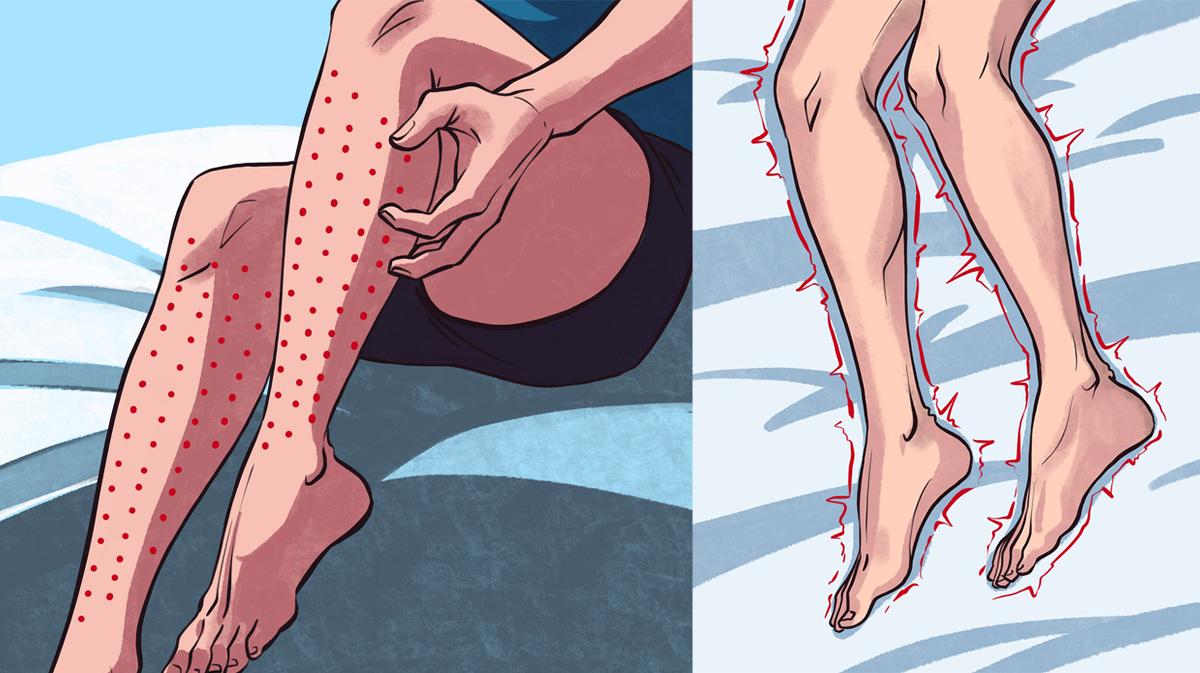 picioare neliniștite noaptea după antrenament cum să ameliorezi umflarea picioarelor